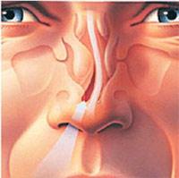 Носовая перегородка